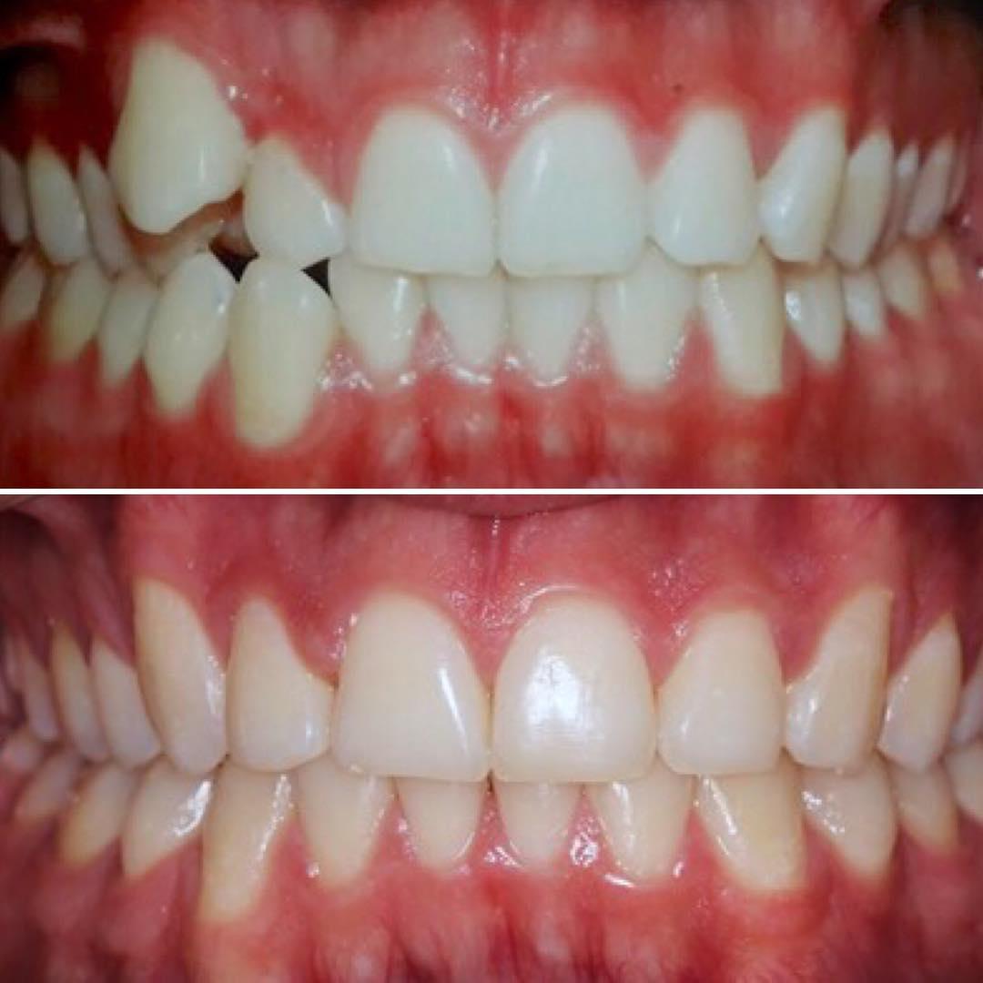 ortodoncia-cali-david-torres (1)