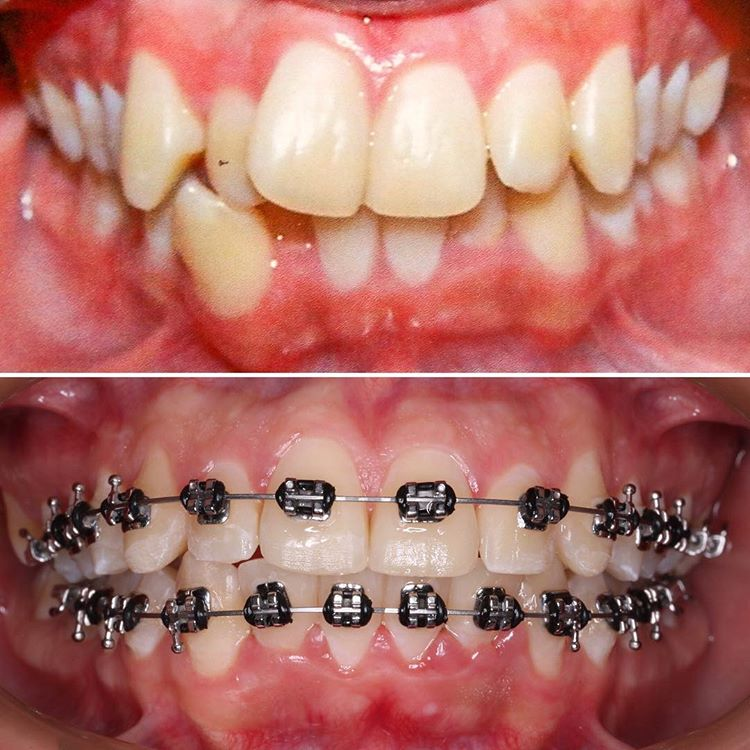 ortodoncia-cali