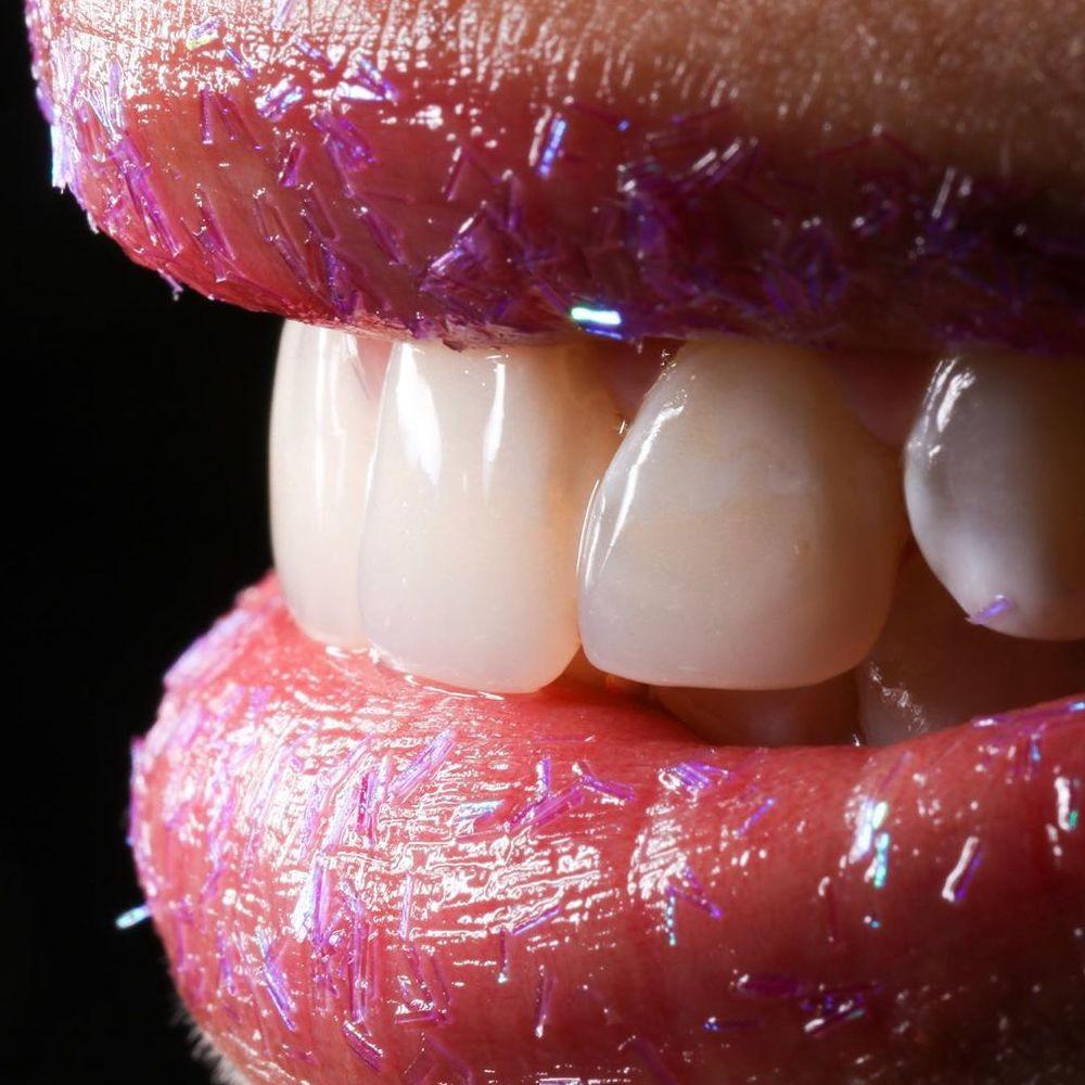 ortodoncia-cali-sonrisa